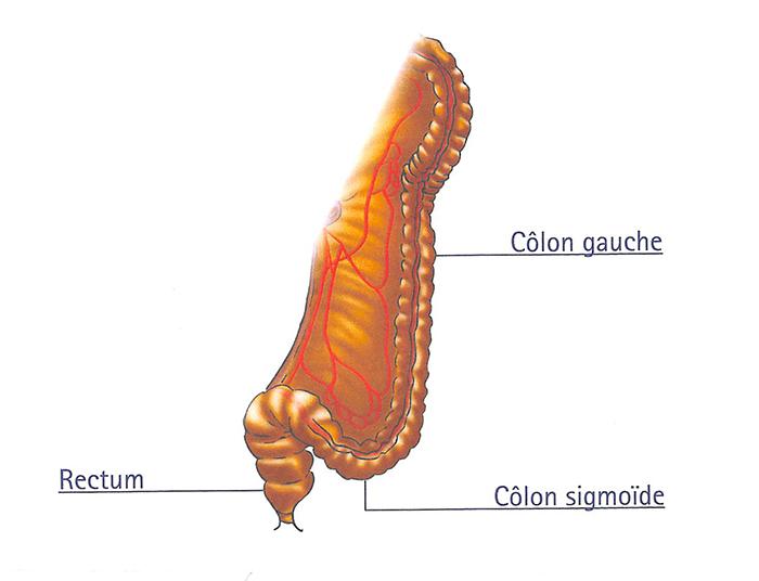 chirurgie_rectum