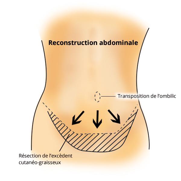 dermolipectomie2